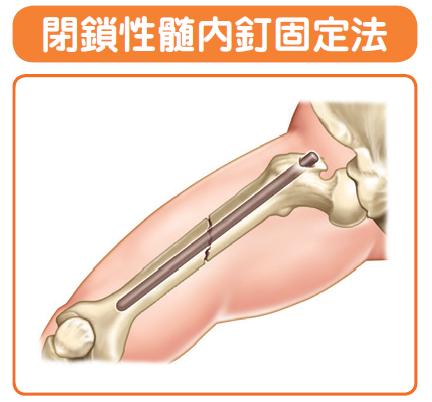 大腿骨の骨折時に使ったキュンチャーという手術法です